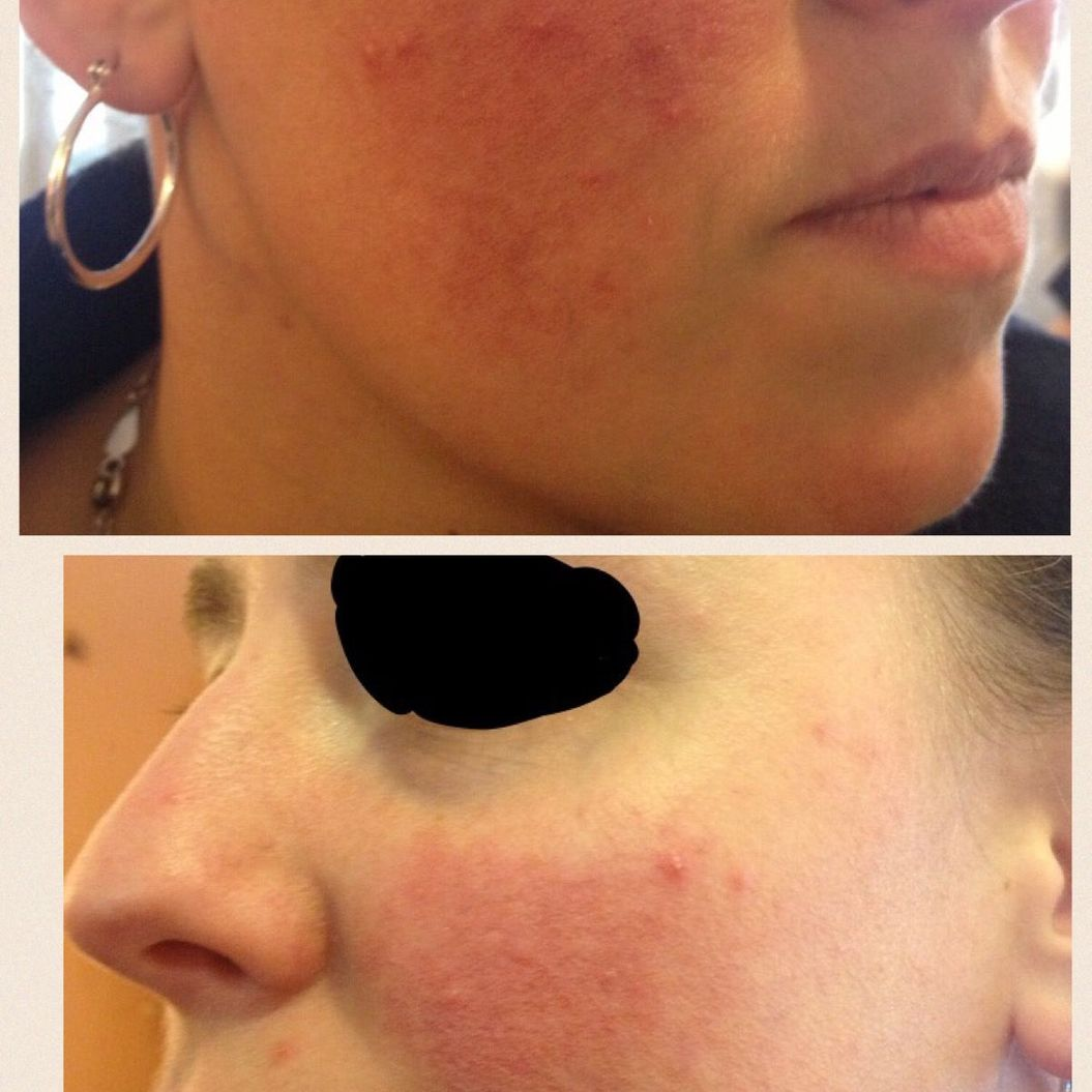 Sirenas Esthetics and Laser Clinic before and after