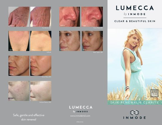 LUMECCA IPL PHOTO REJUVENATION TREATMENTS